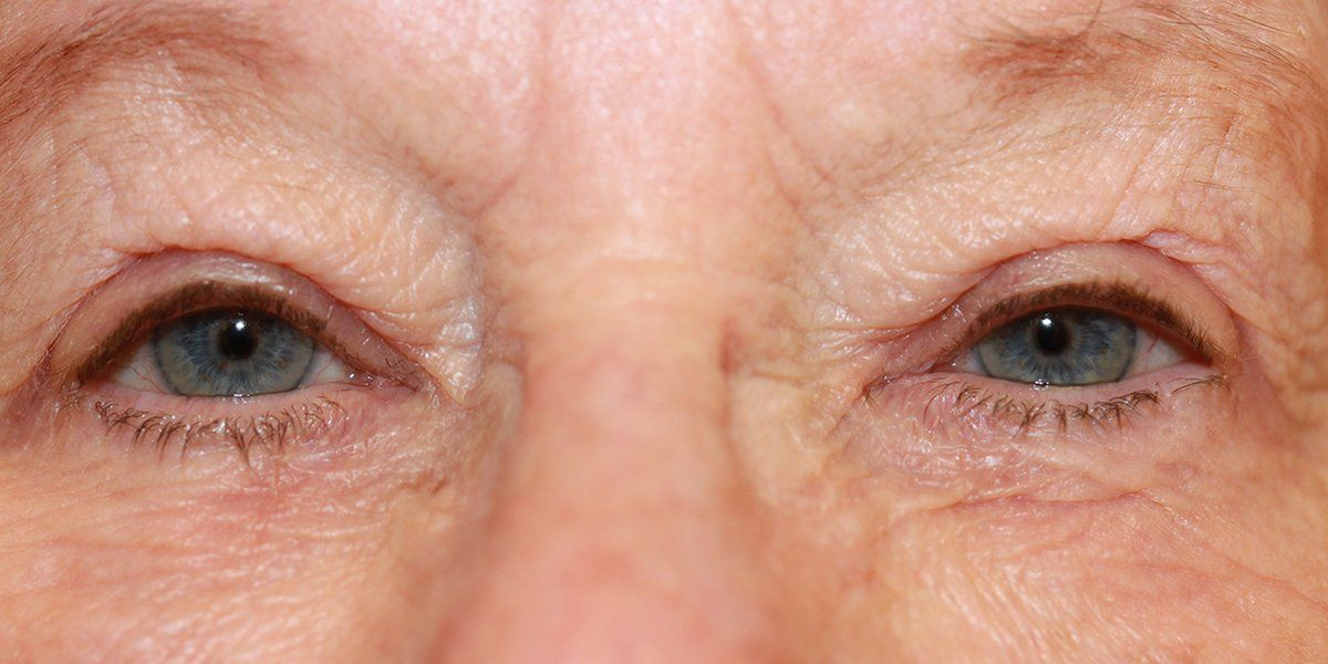 Heather - Blepharoplasty